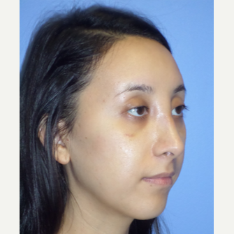 25-34 year old woman treated with Rhinoplasty after 3764683