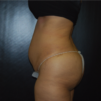 35-44 year old woman treated with Tummy Tuck before 3175196