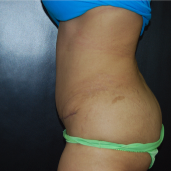 35-44 year old woman treated with Tummy Tuck after 3175196