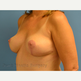 35-44 year old woman treated with Breast Lift after 3349961