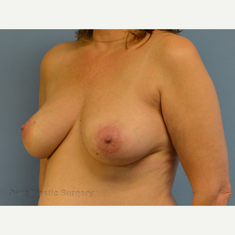 35-44 year old woman treated with Breast Lift before 3349961