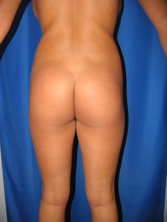 Buttock Augmentation before 1254489