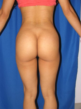 Buttock Augmentation after 1254489