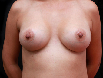 25-34 year old woman treated with Breast Augmentation after 3735146