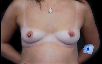 25-34 year old woman treated with Breast Augmentation before 3735146