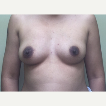 25-34 year old woman treated with Fat Transfer before 3400532