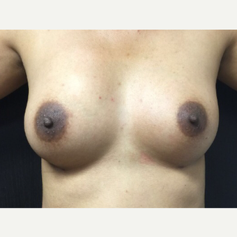 25-34 year old woman treated with Fat Transfer after 3400532