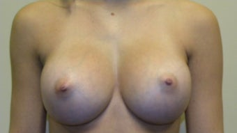 Bilateral Breast Augmentation after 505355