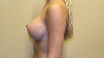 Bilateral Breast Augmentation 505355