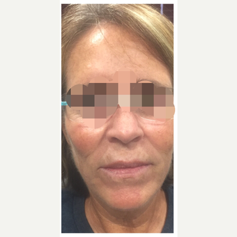 65-74 year old woman treated with Kybella after 3284195