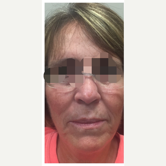 65-74 year old woman treated with Kybella before 3284195