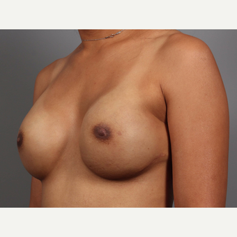 35-44 year old woman treated with Breast Reconstruction, BRCA+ after 3494482