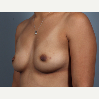 35-44 year old woman treated with Breast Reconstruction, BRCA+ before 3494482