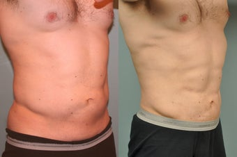 36 year old male Smartlipo abdomen 8 months post op
