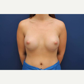 39 year old female, Ideal breast implants, 425cc, submuscular after 3814502