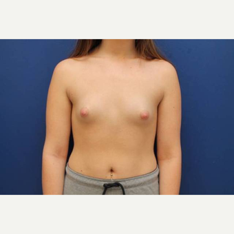 39 year old female, Ideal breast implants, 425cc, submuscular before 3814502