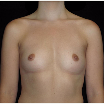 24 year old woman treated with Breast Augmentation before 3802761