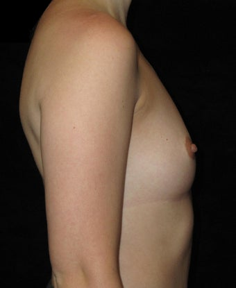 24 year old woman treated with Breast Augmentation 3802761