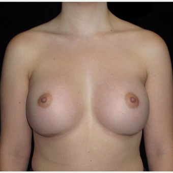 24 year old woman treated with Breast Augmentation after 3802761