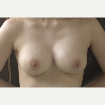 25-34 year old woman treated with Breast Implant Revision after 3447172