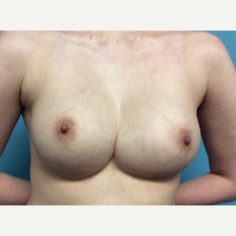 25-34 year old woman treated with Breast Implant Revision before 3447172