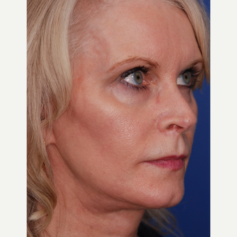 55-64 year old woman treated with Facelift after 3625230