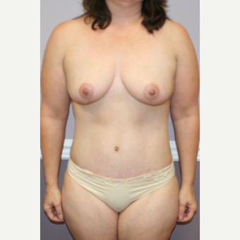 35-44 year old woman treated with Breast Lift after 3454076