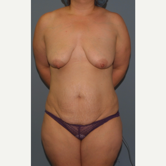 35-44 year old woman treated with Breast Lift before 3454076