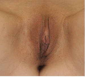 Labiaplasty after 935003