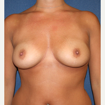 55-64 year old woman treated with Breast Augmentation before 2029113