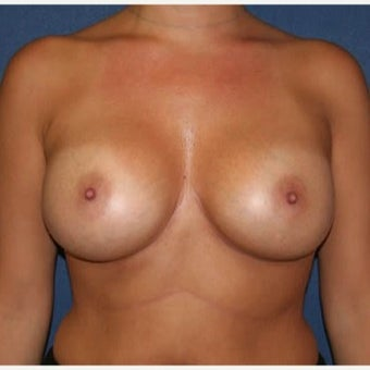 55-64 year old woman treated with Breast Augmentation after 2029113