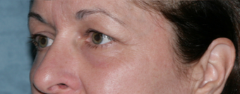 Fraxel Repair Treatment Around Eyes after 1064625
