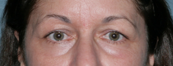 Fraxel Repair Treatment Around Eyes 1064625