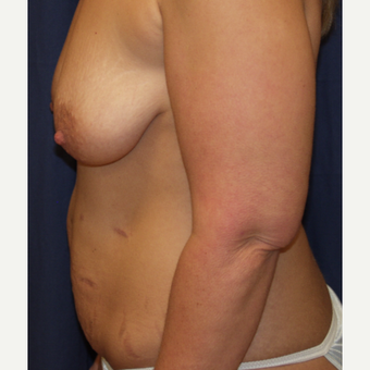 35-44 year old woman treated with Tummy Tuck before 3762902