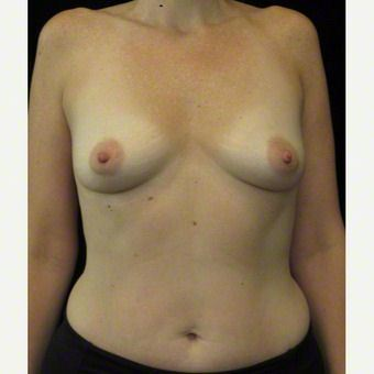 40 year old woman treated with Breast Augmentation before 3103633