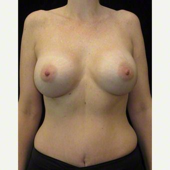 40 year old woman treated with Breast Augmentation after 3103633