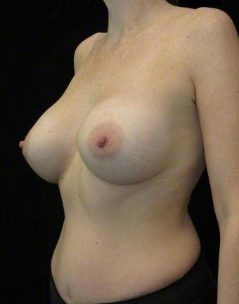 40 year old woman treated with Breast Augmentation 3103633