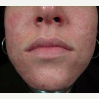 Woman treated with Acne Scars Treatment after 1585418