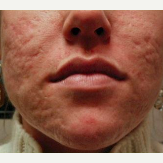 Woman treated with Acne Scars Treatment before 1585418