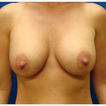 35-44 year old woman treated with Breast Implants after 1854885