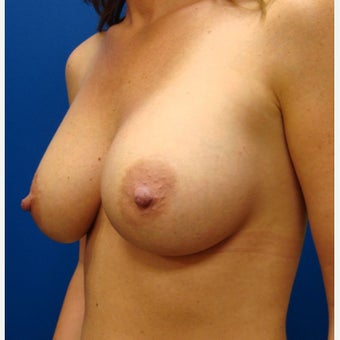 35-44 year old woman treated with Breast Implants 1854885