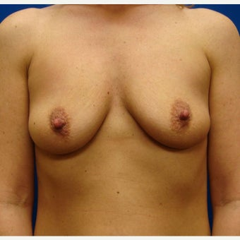 35-44 year old woman treated with Breast Implants before 1854885
