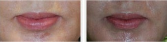 Lip Thinning Reduction