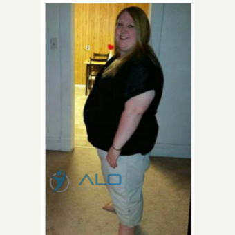 Sleeve Gastrectomy Success story before 2436966