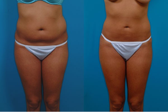 24-year-old woman treated with Liposuction. before 574497