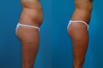 24-year-old woman treated with Liposuction. after 574497