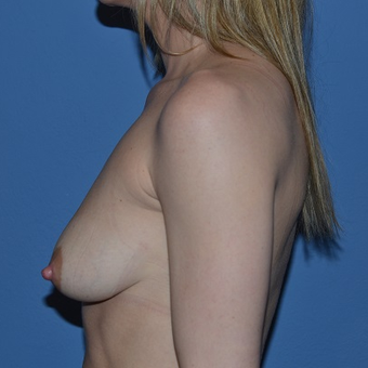 25-34 year old woman treated with Breast Lift with Implants before 3488608