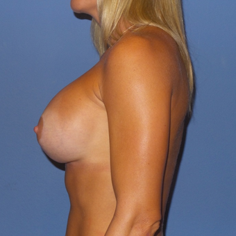 25-34 year old woman treated with Breast Lift with Implants after 3488608