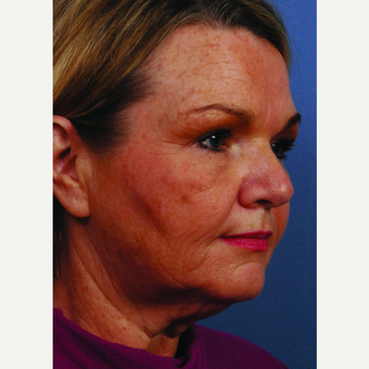 55-64 year old woman treated with Facelift before 3696918