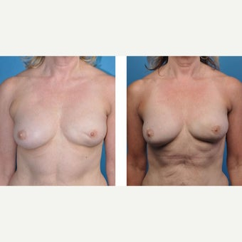 57 year old woman treated with Breast Reconstruction before 2524335